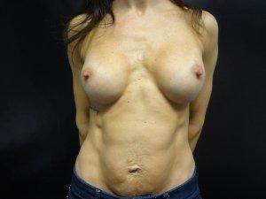 Manhattan Breast Augmentation after 8